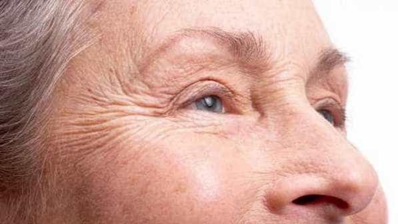Glaucoma: esclareça todas as dúvidas sobre a doença