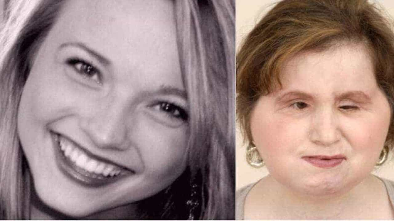 Após tentativa de suicídio, jovem de 21 anos faz transplante de rosto