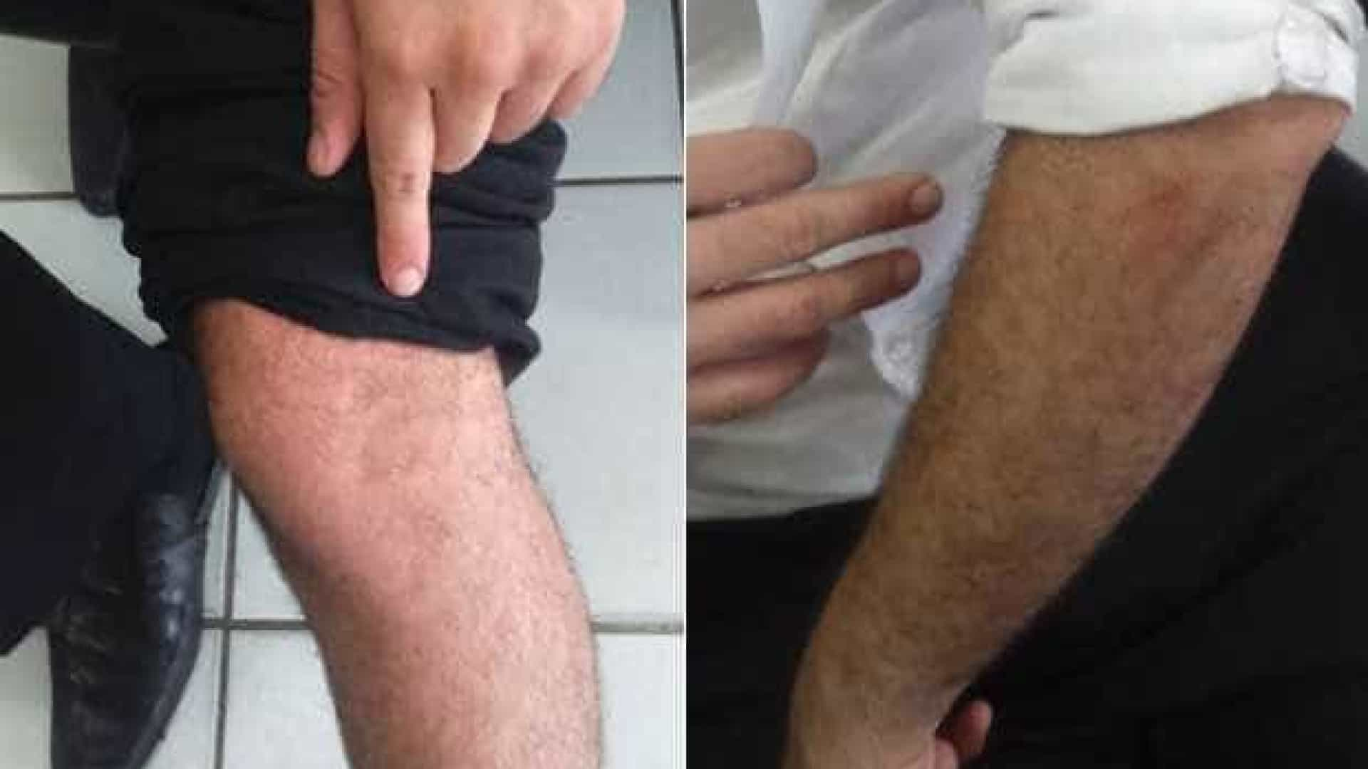 Confundido com motorista do Uber, estudante é agredido em Recife