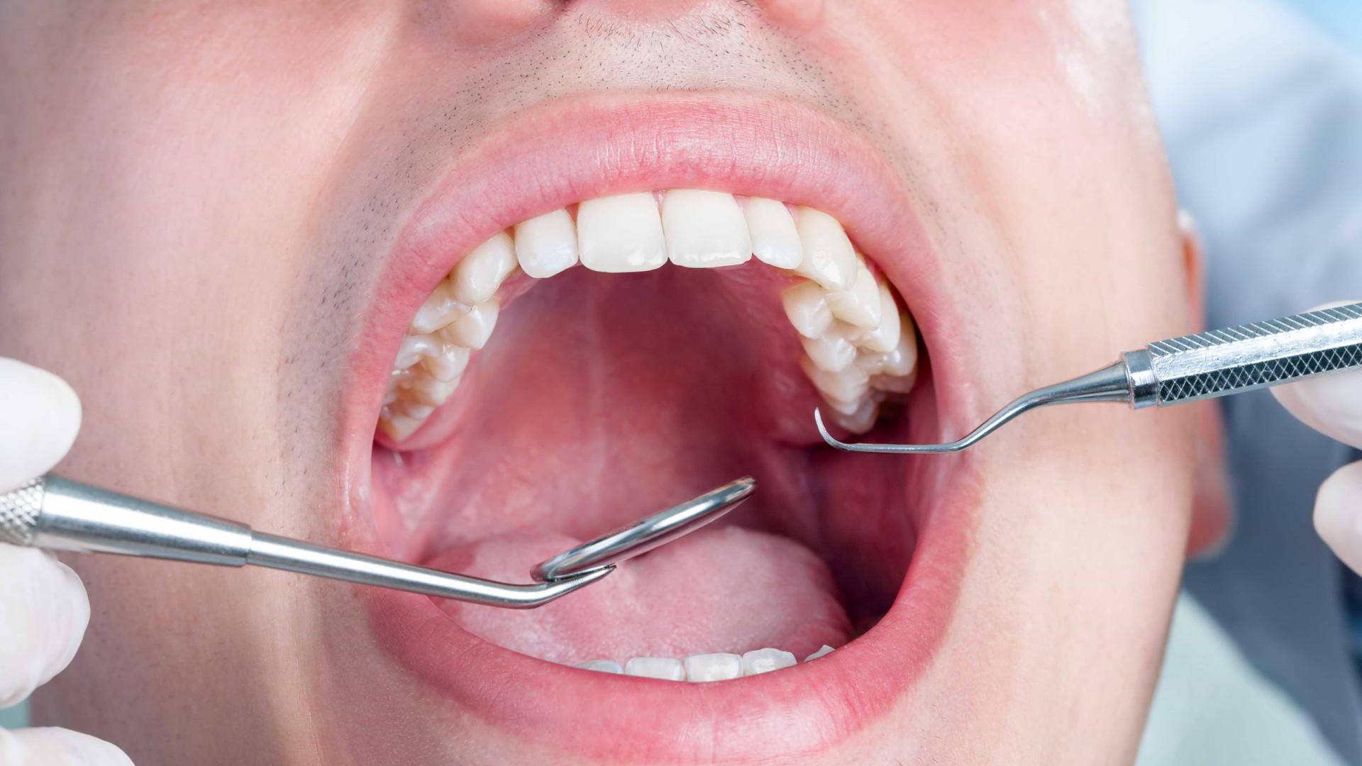 O dente do siso deve sempre ser retirado? Especialista explica