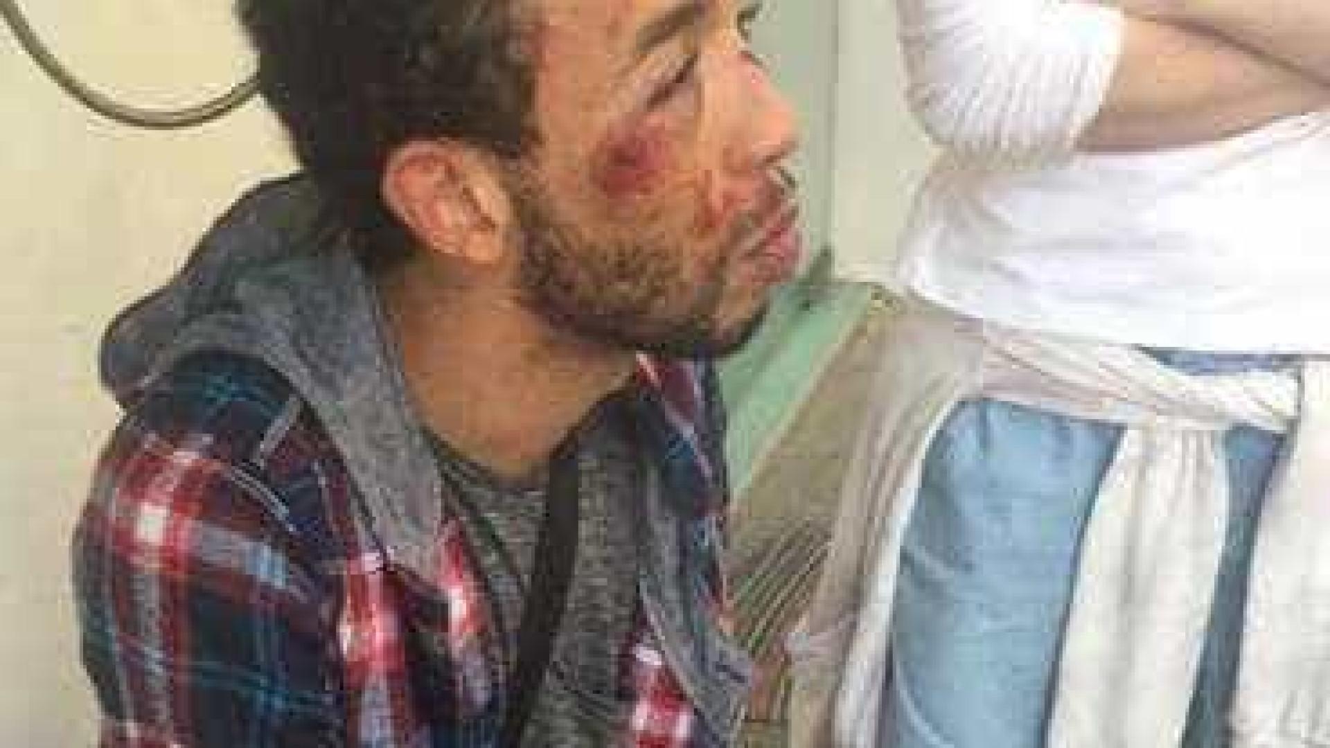 Estudante acusa polícia de agressão homofóbica em delegacia