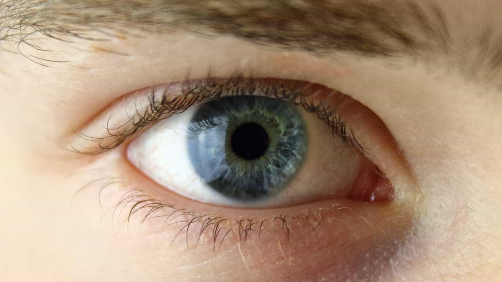 Sêmen mais comprado por brasileiros  vem de brancos de olhos azuis