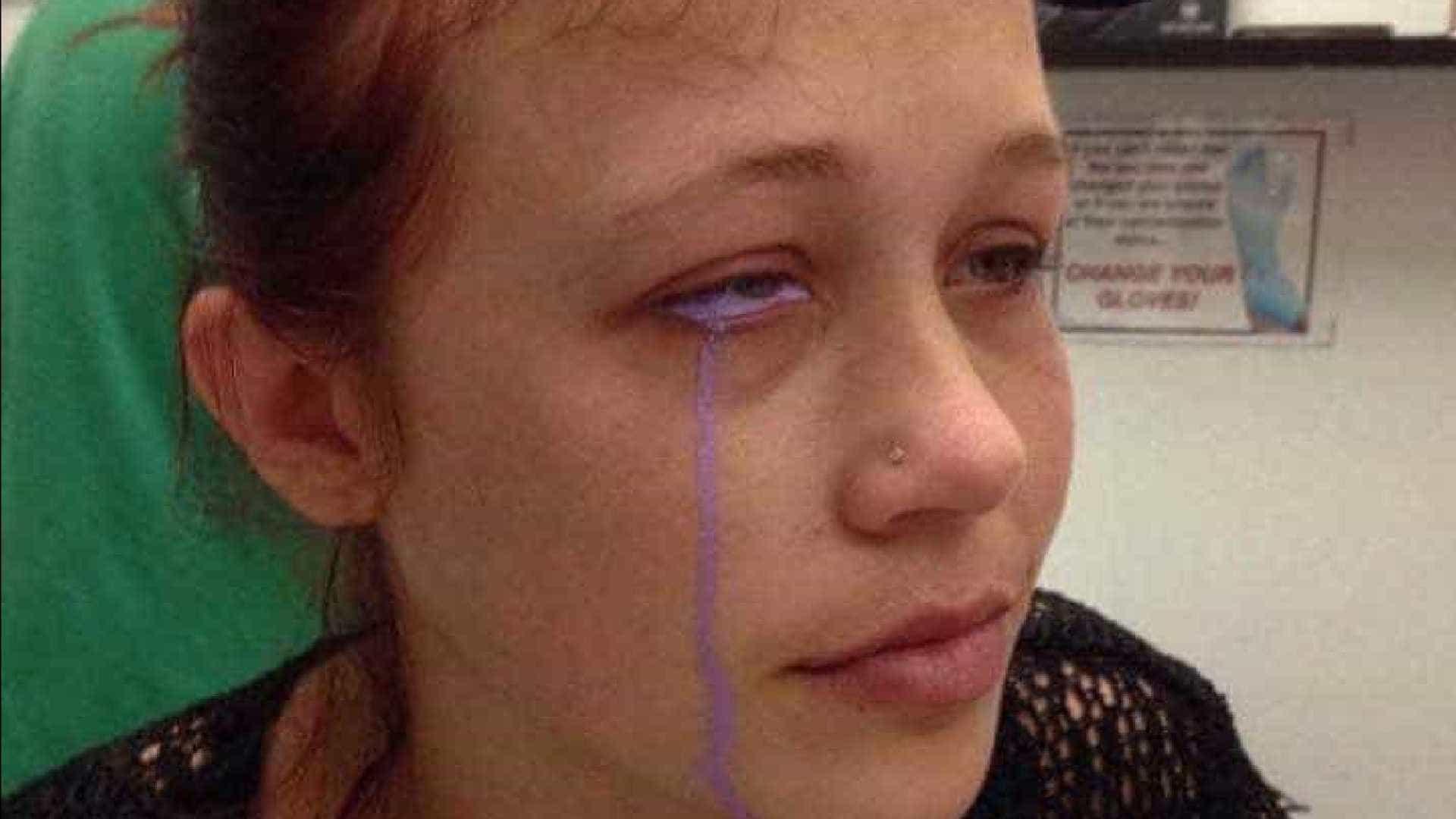 Modelo que fez tatuagem no olho corre o risco de ficar cega