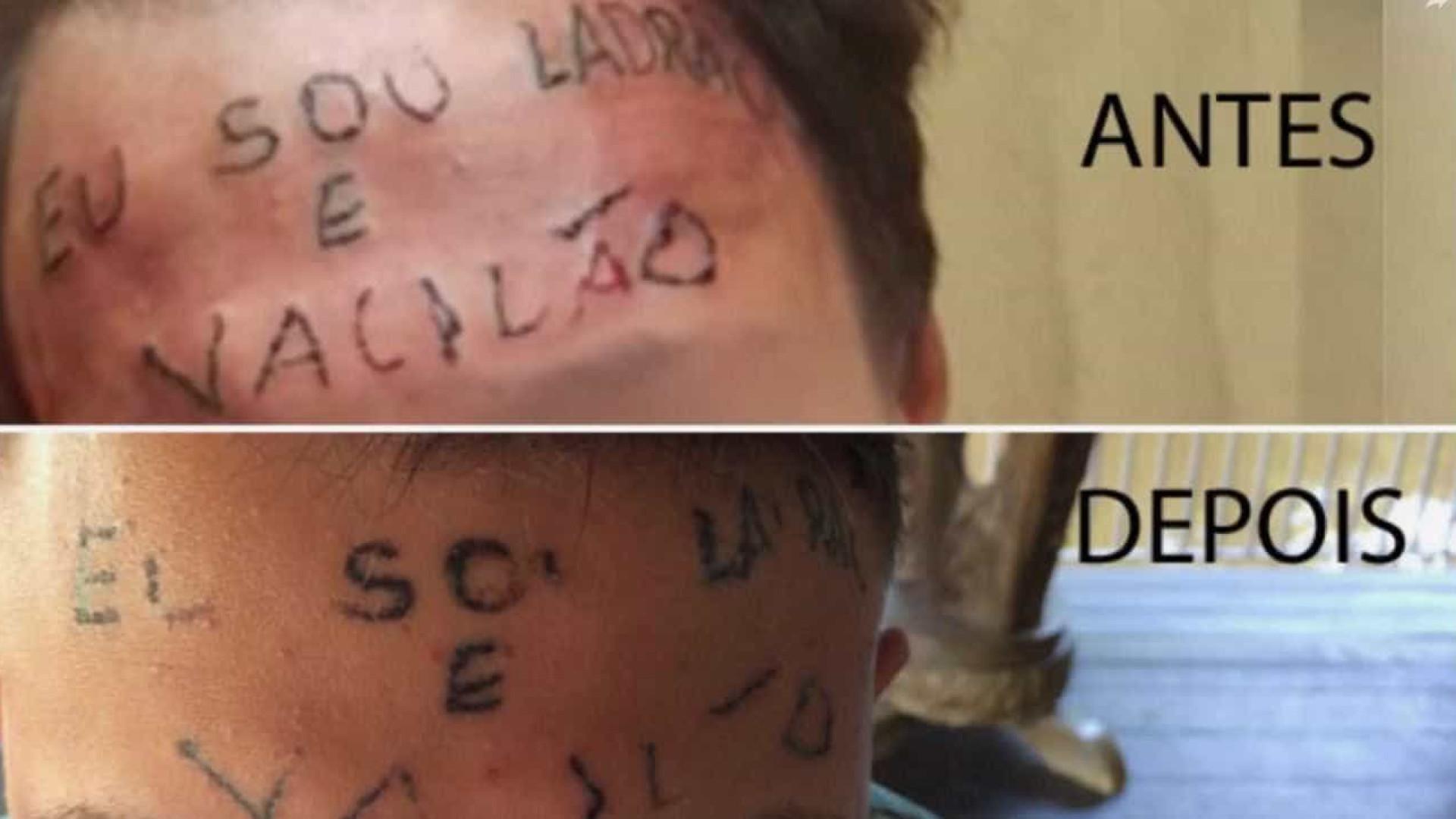 Jovem que foi tatuado na testa: 'não tenho vergonha de mim'
