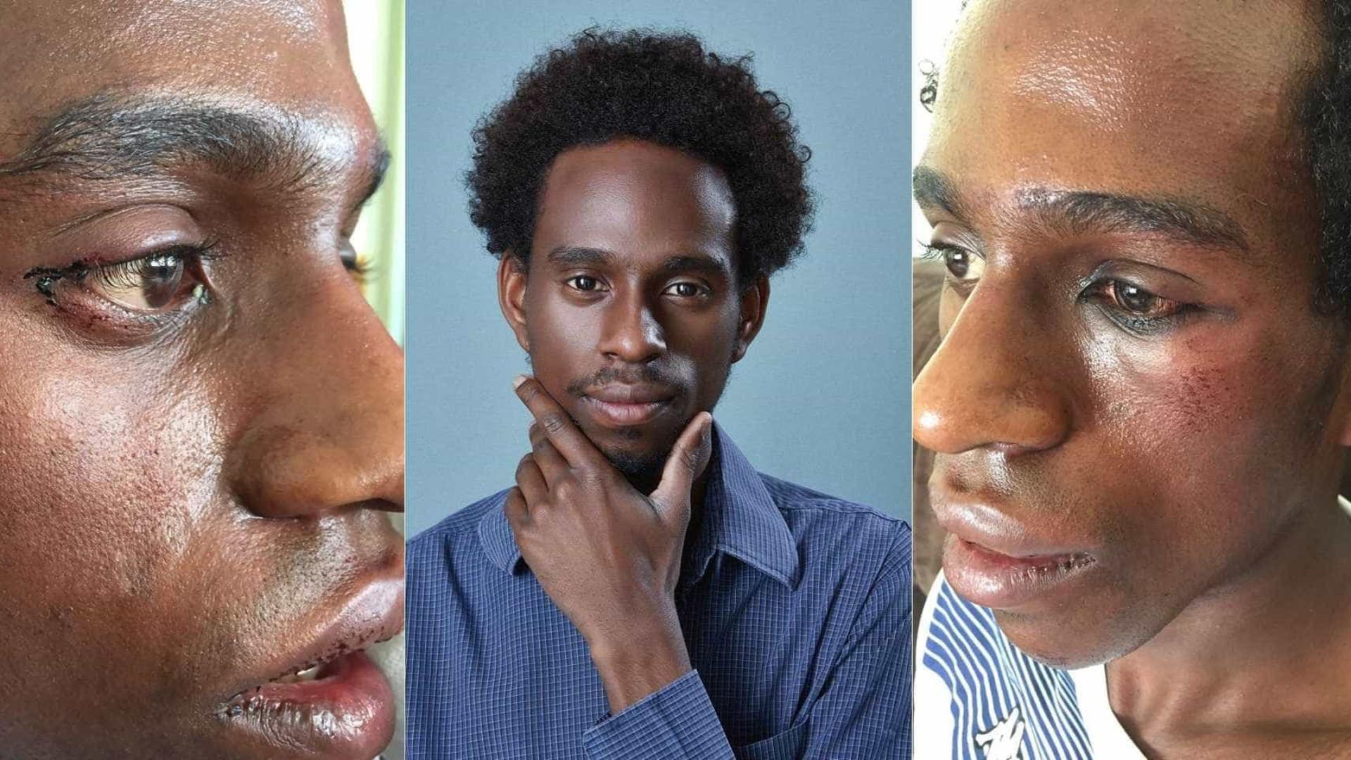 Ator é espancado no centro de SP vítima de racismo