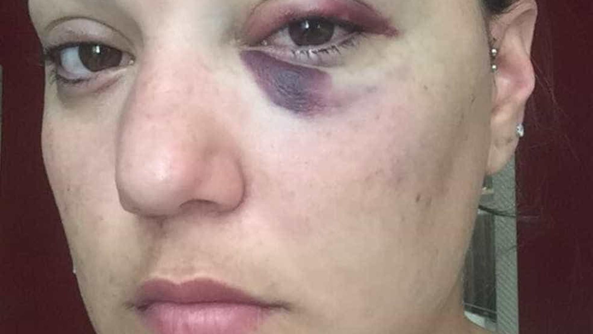 Namorada de lutador de MMA é espancada por atleta