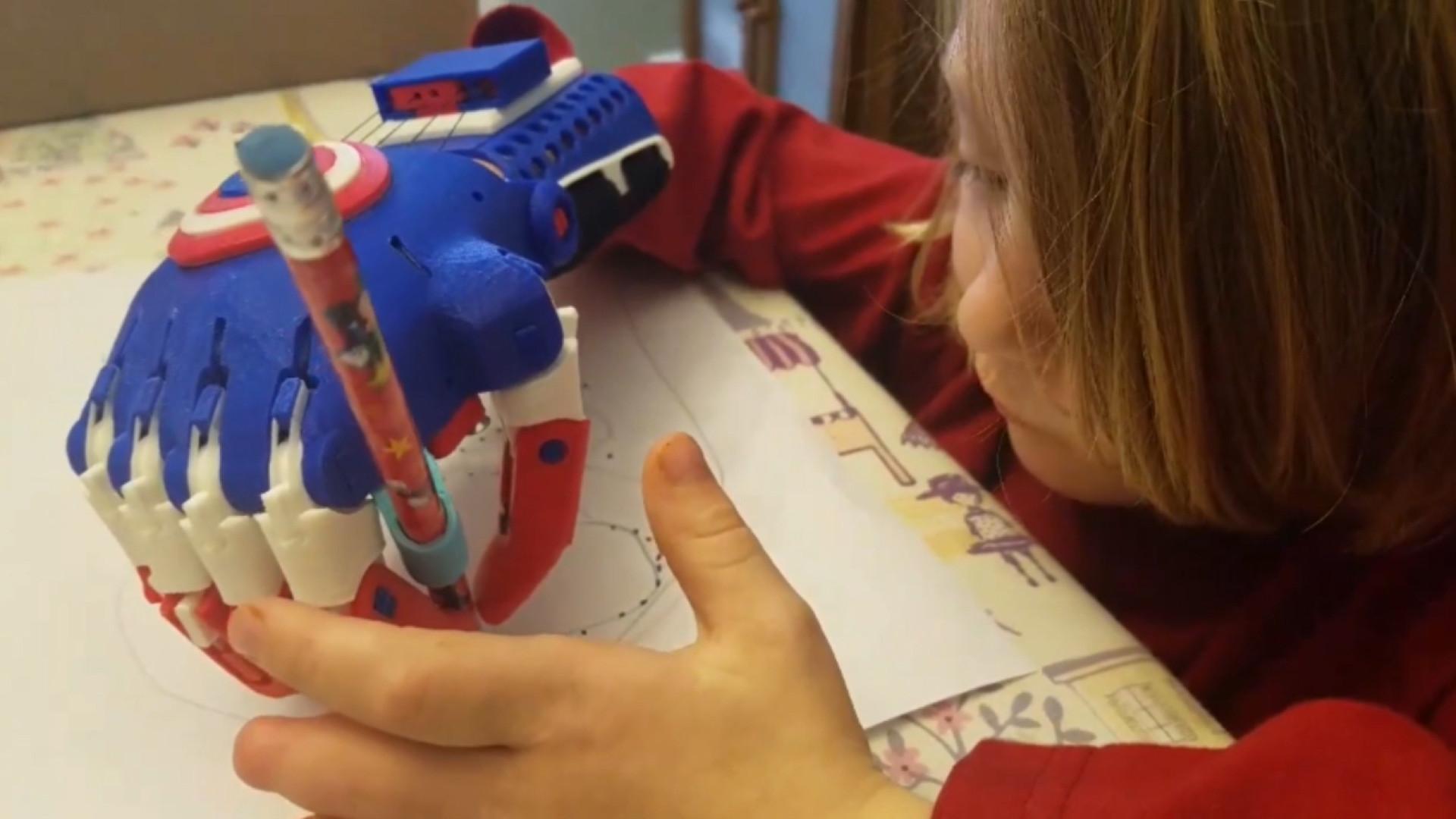 Menino de 5 anos cria próteses 3D para crianças com deformidades