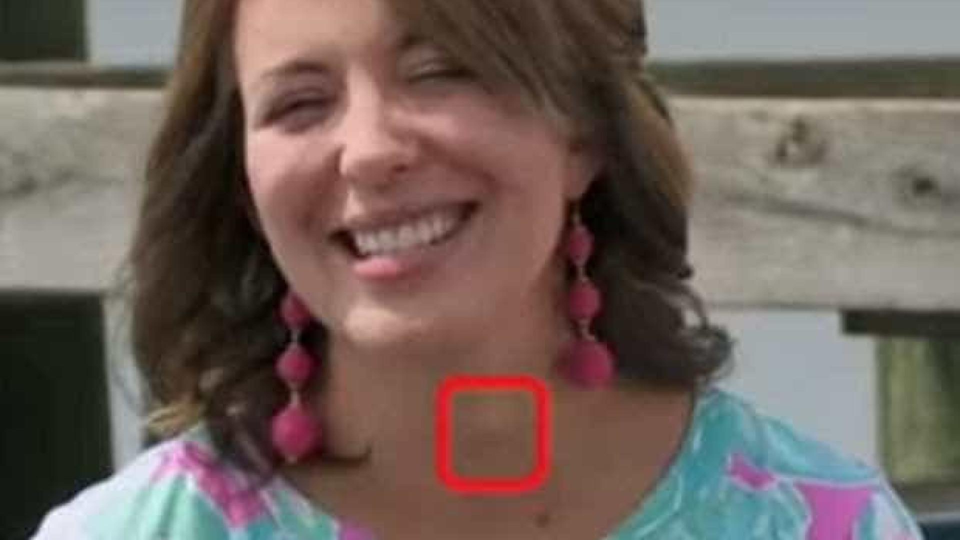 Mulher é diagnosticada com câncer por médico que a viu pela TV