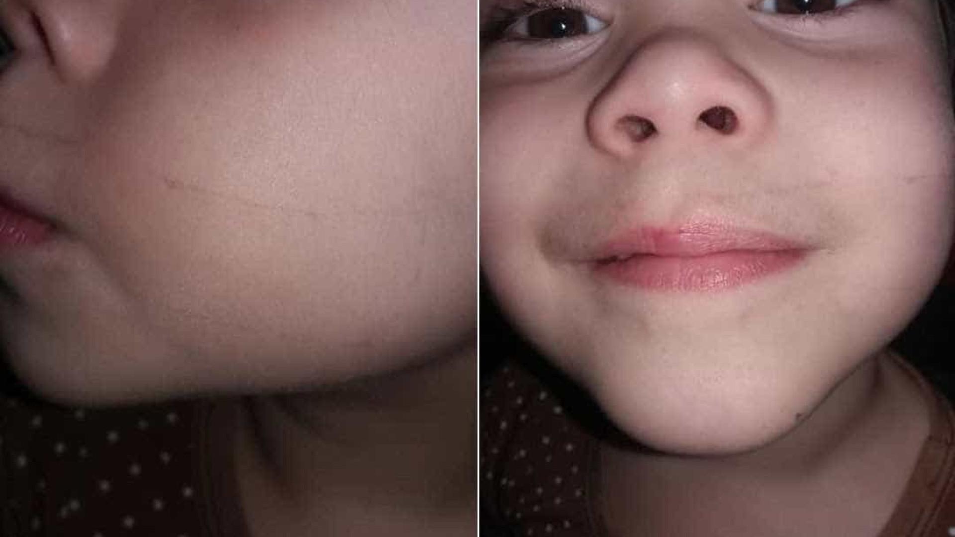 Mãe acusa professora de colar boca da filha de 4 anos com esparadrapo