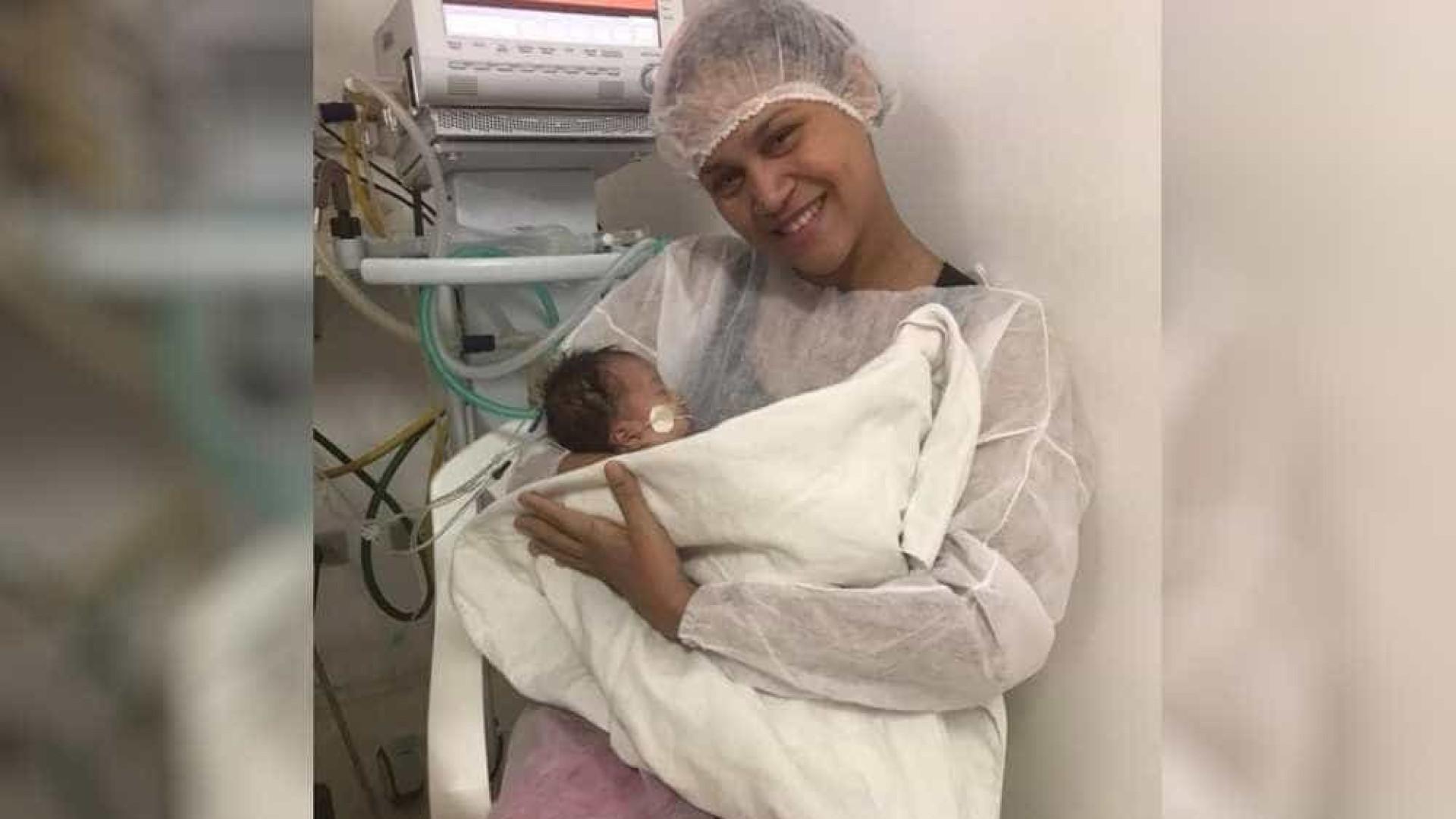 Uma das gêmeas siamesas separadas em Goiânia recebe alta médica