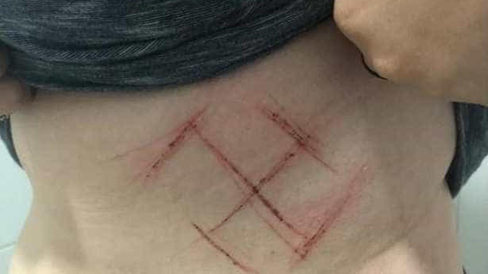 Polícia investiga agressão contra jovem que foi marcada com suástica