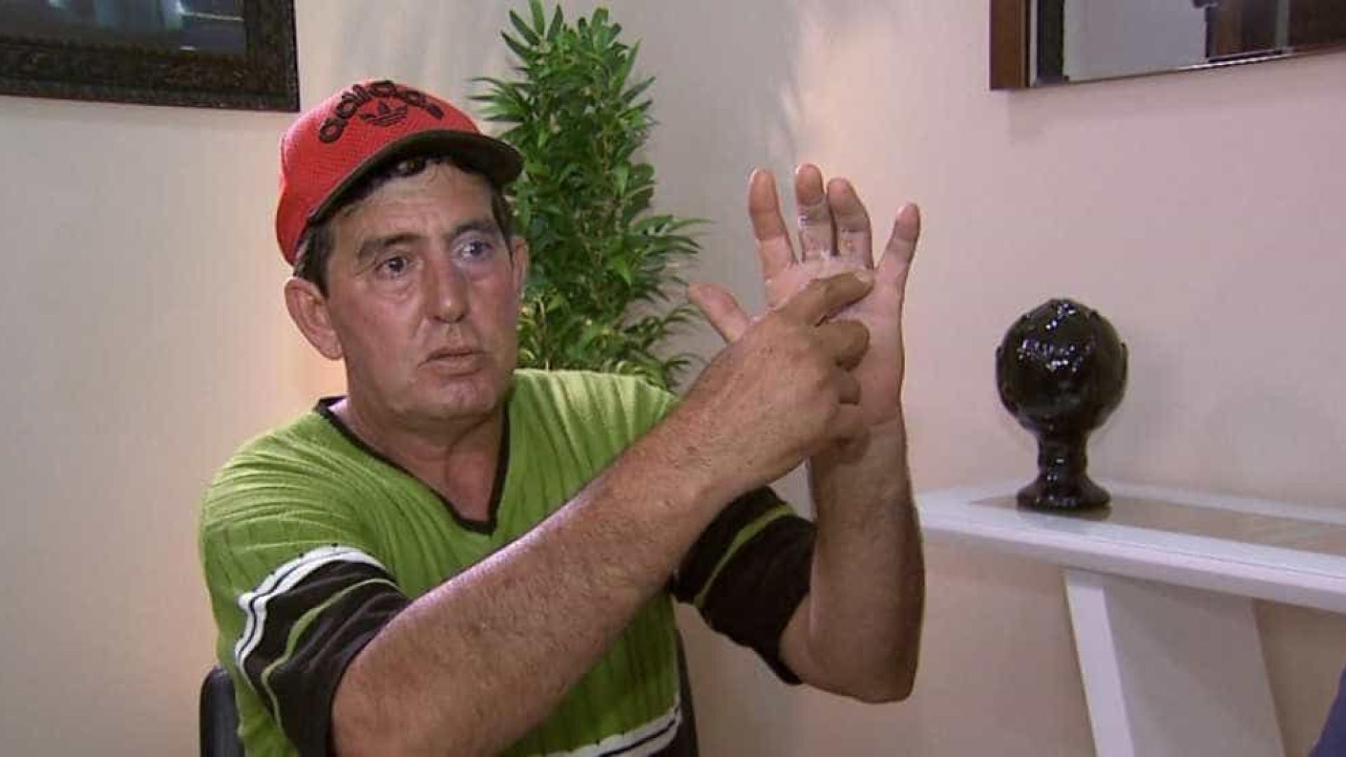Homem acorda da anestesia e descobre que médico operou dedo errado