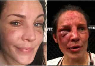 Musa do UFC mostra recuperação após ter rosto castigado
