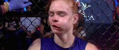 Ex-UFC, lutadora americana fica com rosto desfigurado após derrota