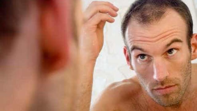 6 formas eficazes para disfarçar a calvície
