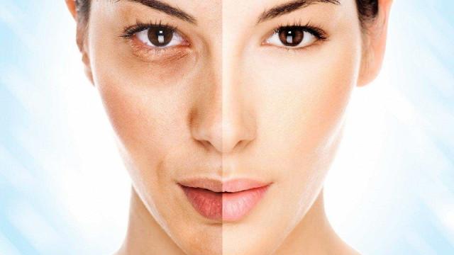5 dicas para amenizar e disfarçar as olheiras
