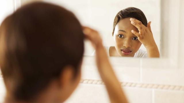 6 hábitos que pioram a acne facial