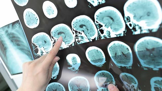 46% dos brasileiros não conhecem a esclerose múltipla, aponta pesquisa