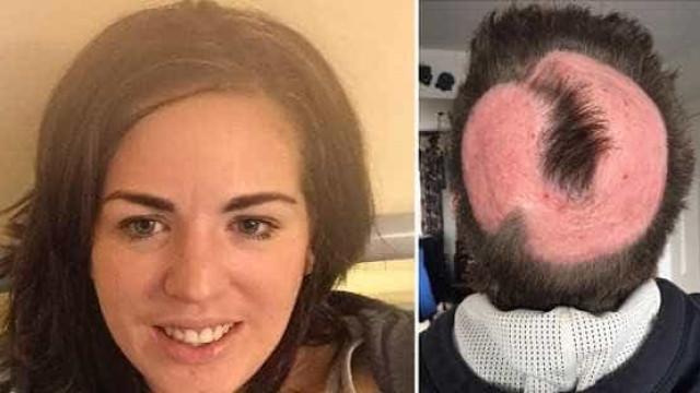 Inglesa perde parte do couro  cabeludo ao fazer 'cabelo de unicórnio'