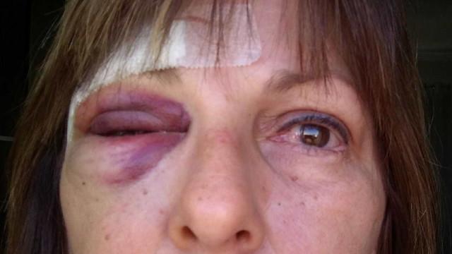 Garoto de 15 anos que agrediu professora se entrega para internação