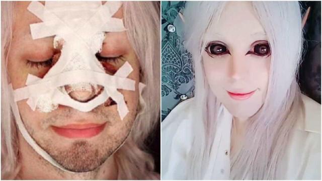 Jovem argentino faz cirurgias para se transformar em elfo