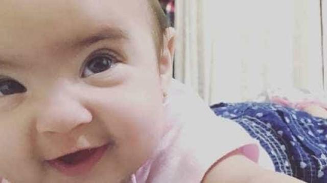 Médico tirou bexiga de bebê por engano, diz mãe