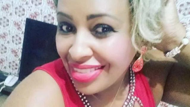 Brasileira morre na Bolívia após cirurgias plásticas