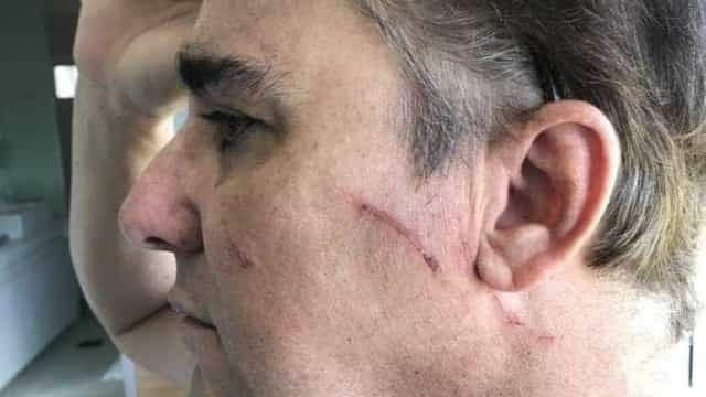 'Escorregão' causou olho roxo, diz ministro suspeito de agredir mulher