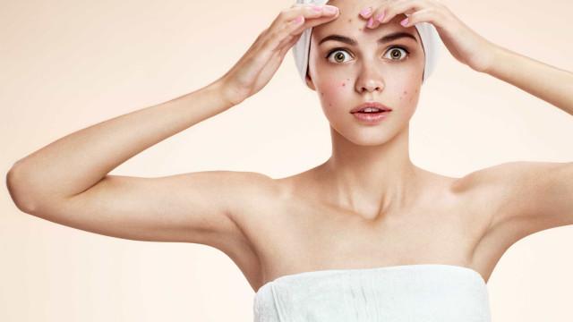 Estratégias mais certeiras para tratar a acne em adulto