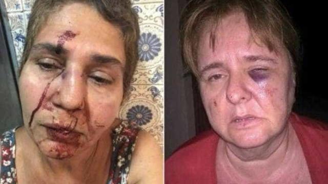 Briga entre vizinhos termina em pancadaria com três mulheres agredidas