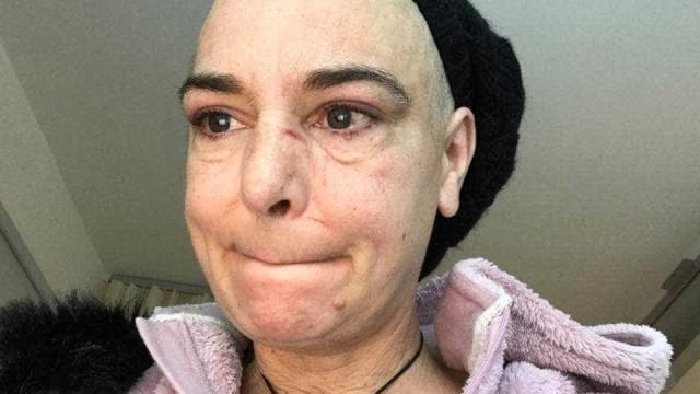 Sinéad O'Connor choca com novo drama: 'Meu filho de 30 anos me bateu'