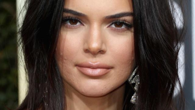 Kendall Jenner mostra espinhas ao posar em tapete vermelho de evento