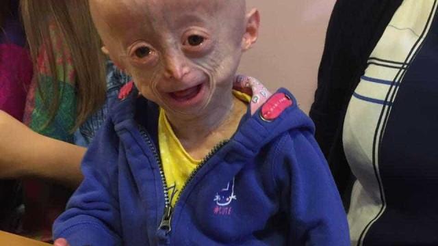 Morre menina com doença rara que a envelhecia 8 vezes mais rápido