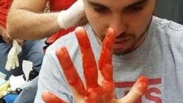 Jovem diz ter sofrido agressão por homofobia em shopping de SP