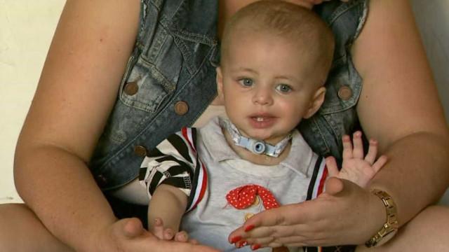 Bebê é internado com pneumonia e tem pé e dedos das mãos amputados