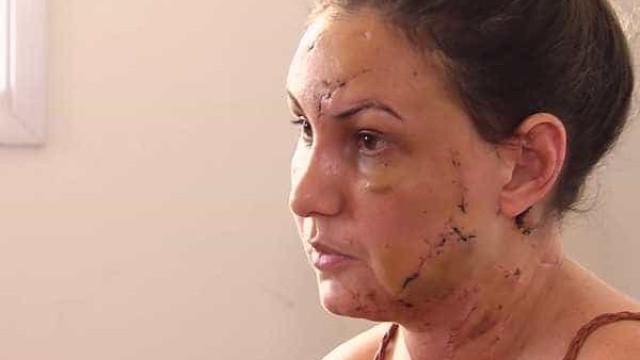 Mulher conta como foi espancada por namorado que se matou em motel