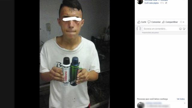 Jovem com tatuagem de 'ladrão' na testa volta a ser internado em SP