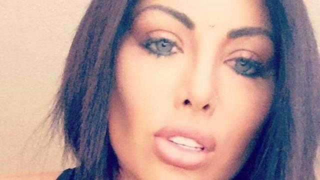 Modelo argentina perde visão ao mudar cor dos olhos