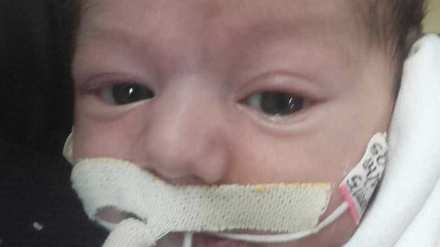 Bebê morre após 43 dias à espera de cirurgia no coração