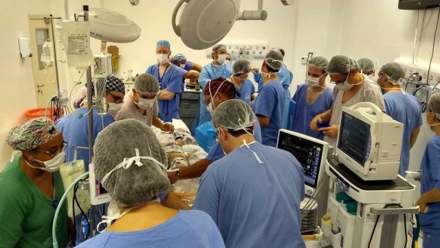 Irmãs siamesas unidas pela cabeça se recuperam após cirurgia