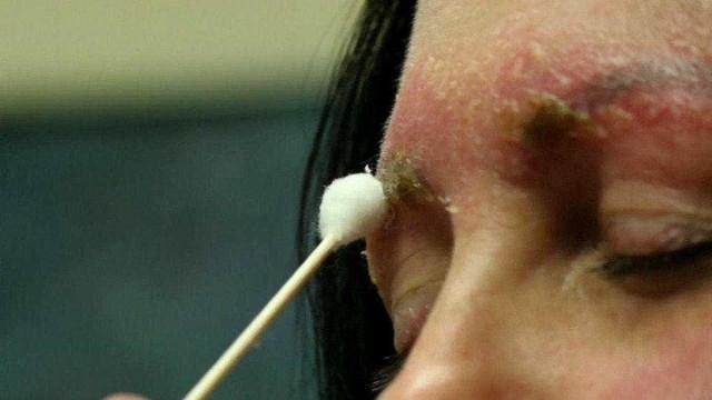 Microblading: mulher quase morre após infecção na sobrancelha