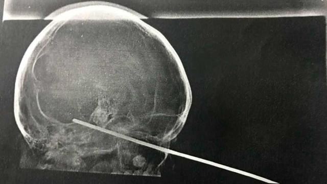 Menino de 8 anos tem cérebro perfurado por espeto de churrasco na BA