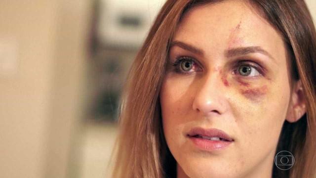 Mulher agredida nos EUA desabafa: 'Ciúme doentio'