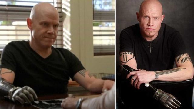 Ator de 'Better Call Saul' revela ter arrancado o próprio braço