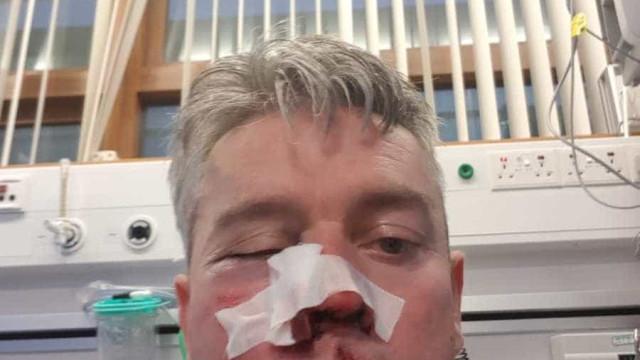 Árbitro é espancado após jogo de futebol na Irlanda