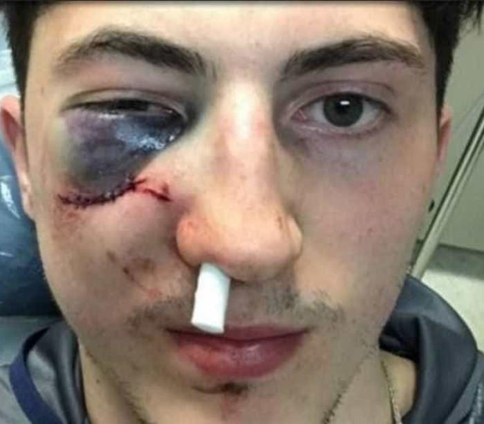 Jogador de hóquei leva tacada e quase perde o olho; veja o lance