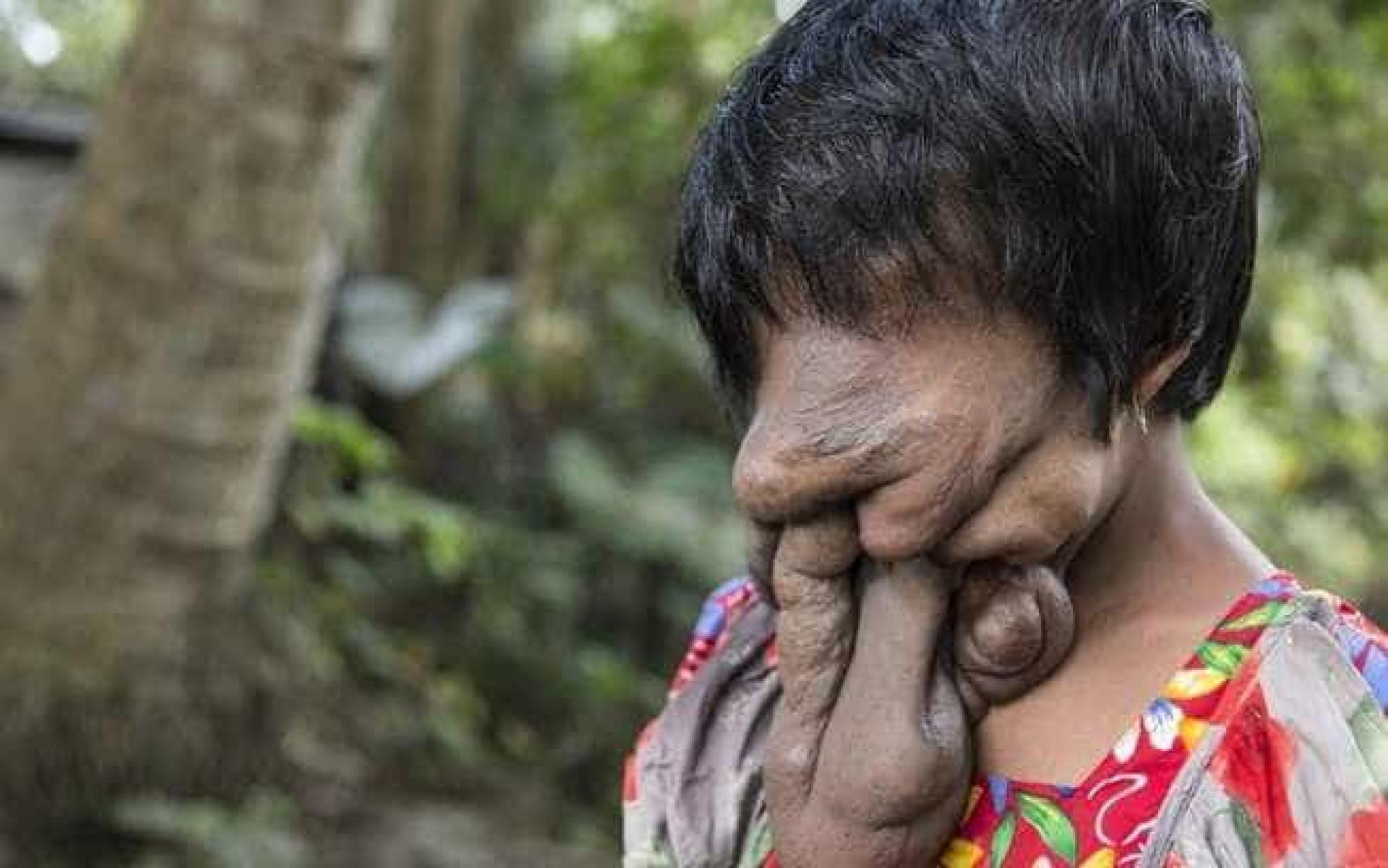 """Na Índia, mulher """"sem rosto"""" se diz feliz e contrária à cirurgia"""