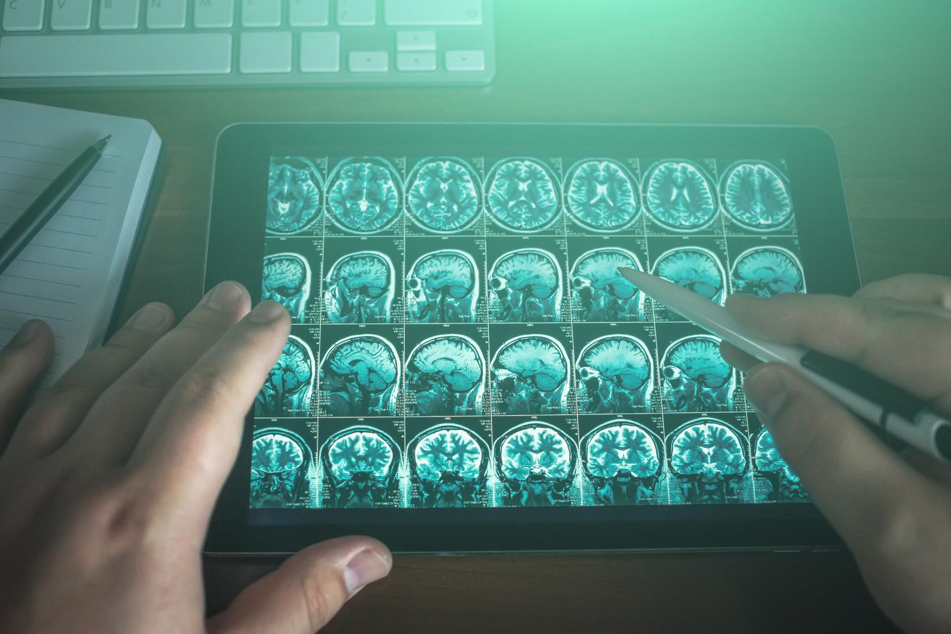 ELA: o que é a Esclerose Lateral Amiotrófica, doença de Stephen Hawking