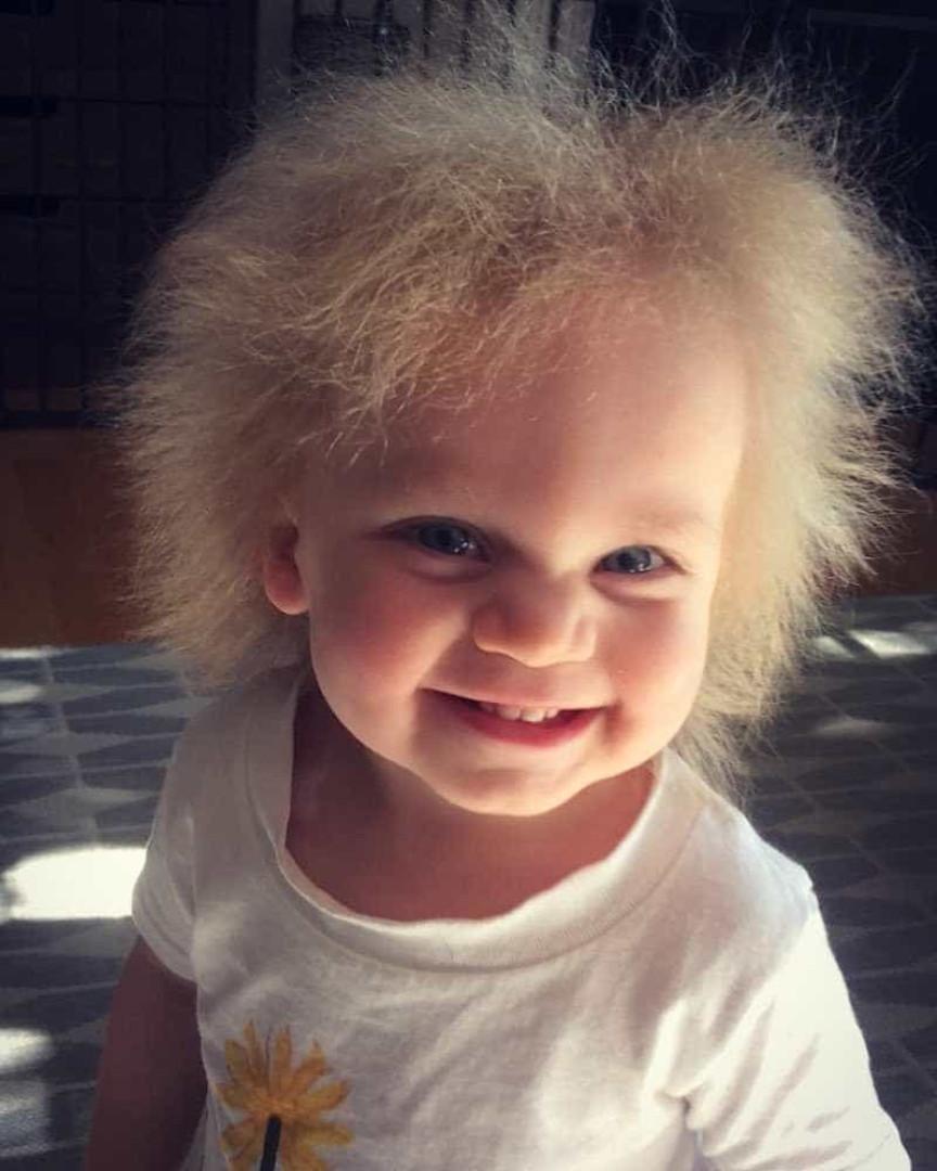 Doença rara faz menina ter cabelo igual ao de Einstein