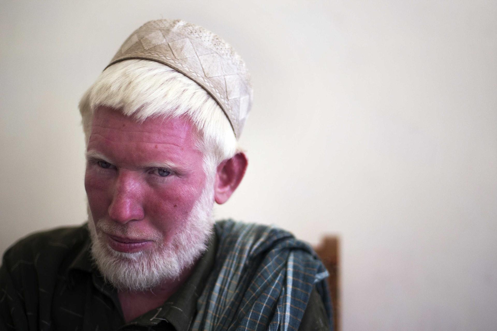 Fotos comprovam a beleza albina ao redor do mundo